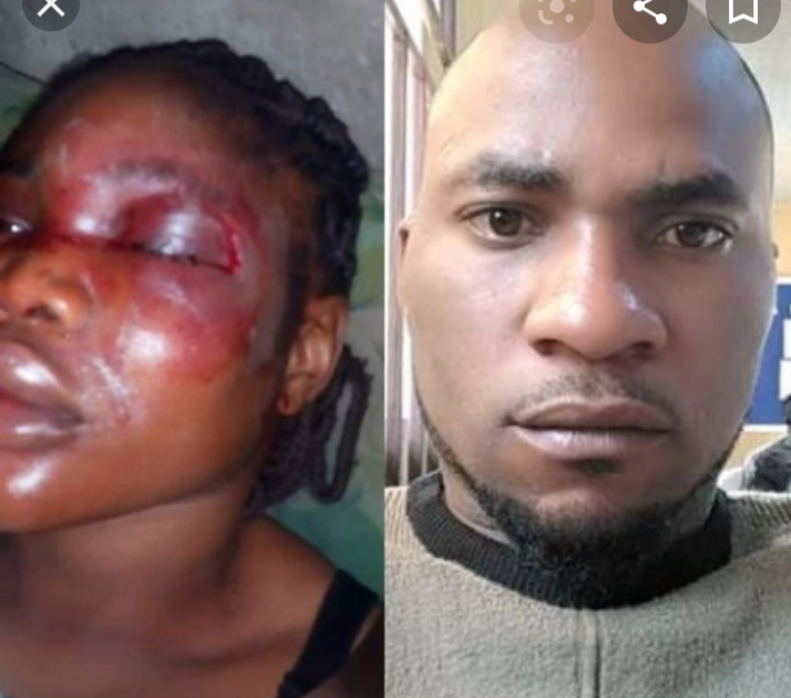 Look At Look At How This Woman Was Beaten Up By Husband Few Days After Their Wedding.